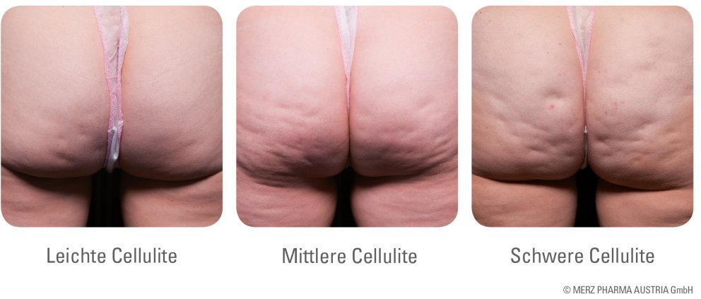 Arten der Cellulite